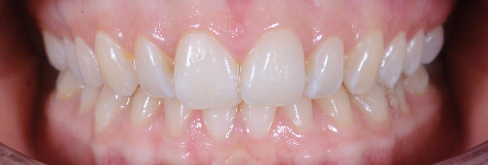 Rutinekontroll A1 tannlege