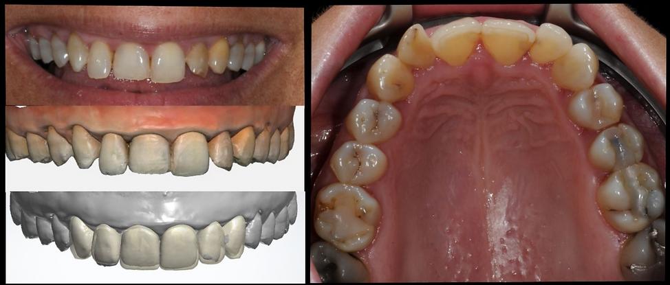Estetisk tannbehandling A1 tannlege