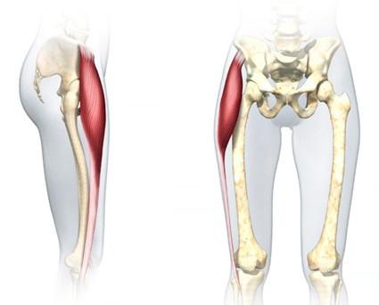 le tenseur du fascia lata pour grossir des hanches, effacer le creux des hanches et les hip dips