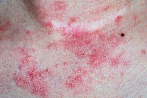 Atopic eczema.jpg