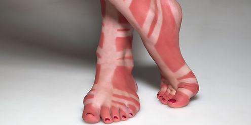 1495795772-sunburn.jpg