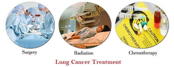 lung-cancer-treatment.jpg