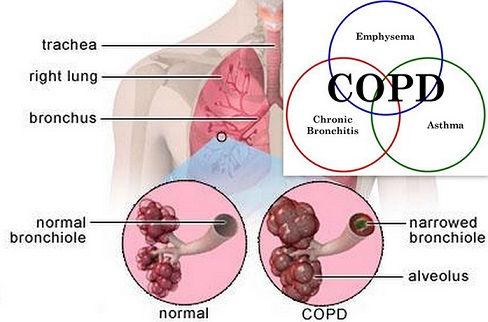 COPD11.jpg