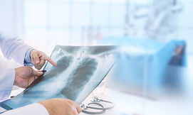 Doctor examining at lungs radiograph x-r