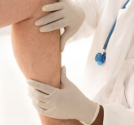 Lower limb vascular examination because