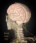 Brain tumors - few important facts