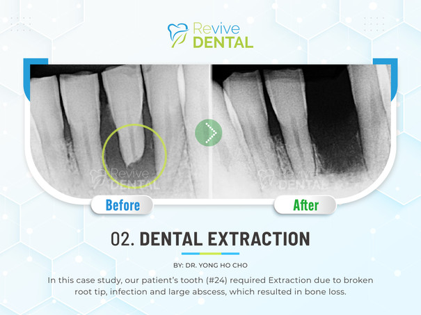 02. Dental Extraction