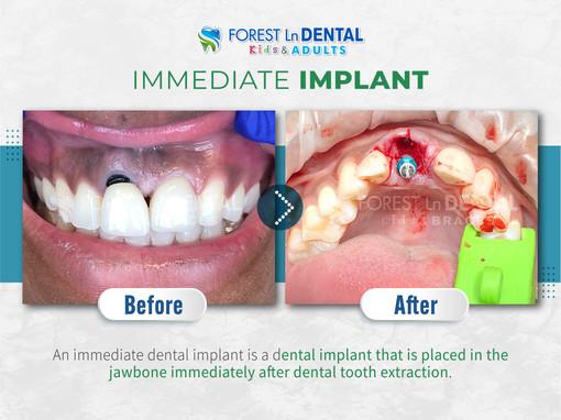 Immediate Implant