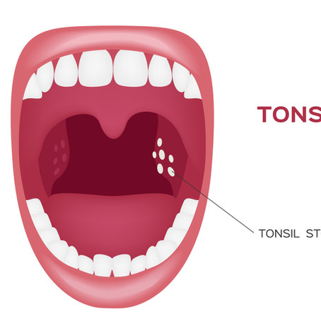 Do You Have Tonsil Stones? Causes, Symptoms & Treatments, With Waco, Texas Family & General Dentist