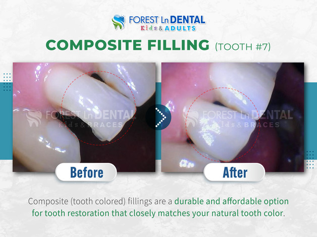 Composite Filling (Tooth #7)