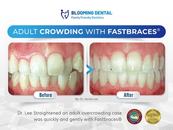 Adult Crowding With Fastbraces®