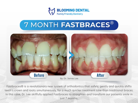 7 Month Fastbraces®