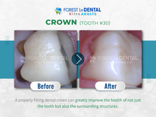 Crown (Tooth #30)