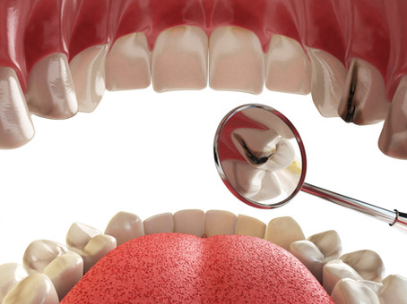 What Makes Foods More Likely to Cause Cavities? Your Lewisville,TX Family & General Dentist Explains
