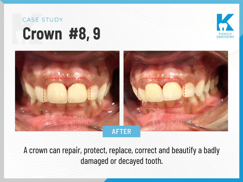 Crown #8, 9