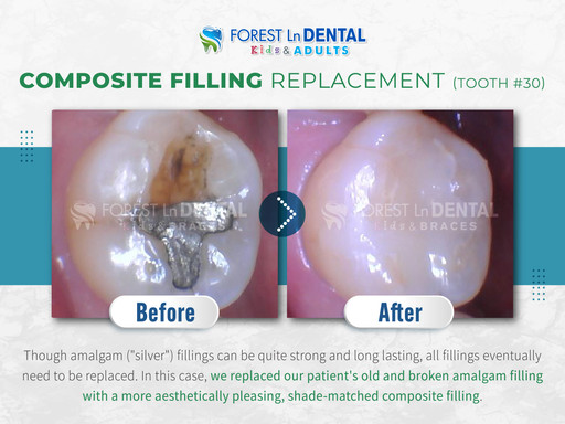 Composite Filling Replacement (Tooth #30)