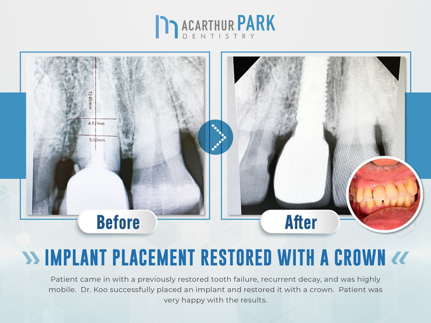 Implant Placement Restored with a Crown