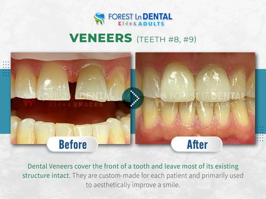 Veneers (Teeth #8, #9)