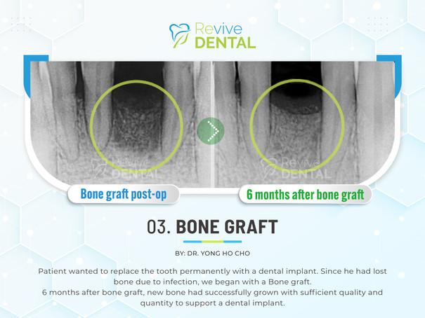 03. Bone Graft