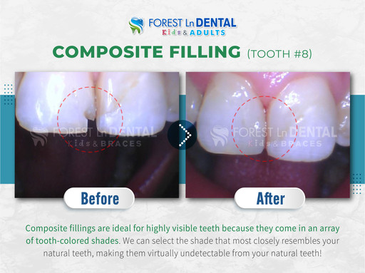 Composite Filling (Tooth #8)