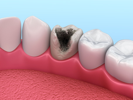 What Makes Foods More Likely to Cause Cavities? Your Cedar Park, TX Family & General Dentist Explain