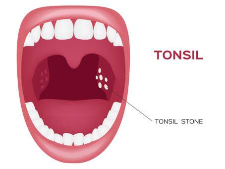 Are Tonsil Stones Giving You Bad Breath? Learn More with General& Family Dentist in Northwest Dallas