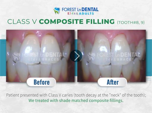 Class V composite filling tooth#8,#9