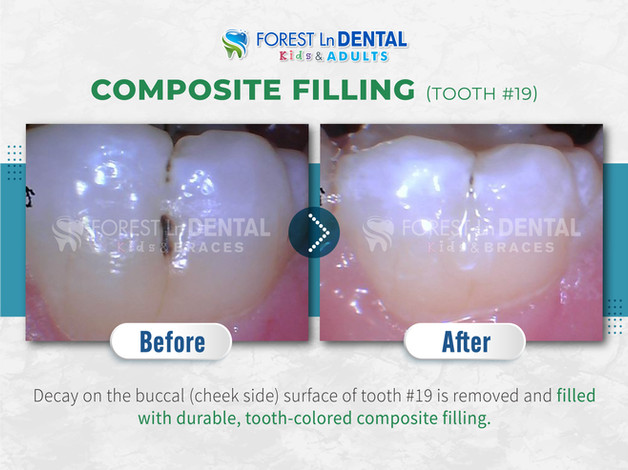 Composite Filling Tooth #19