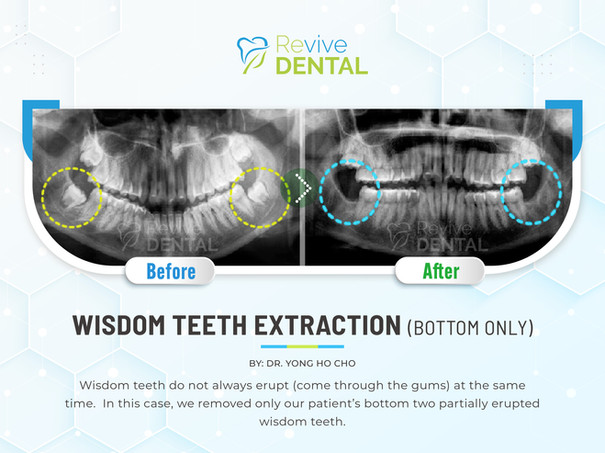 Wisdom Teeth Extraction (Bottom Only)