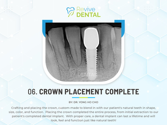 06. Crown Placement Complete