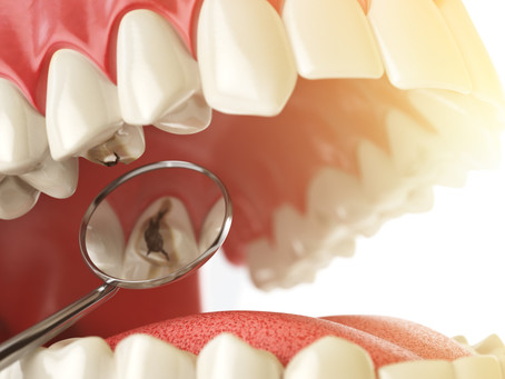 What is Cariogenicity? Learn What Foods Cause Cavities, with Lewisville, TX General & Family Dentist