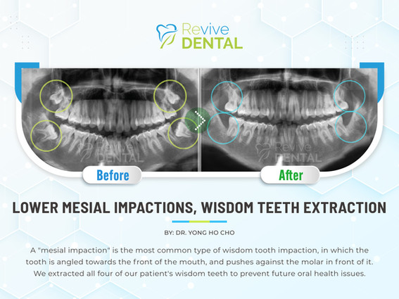 Lower Mesial Impactions, Wisdom Teeth Extraction
