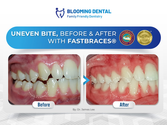 Uneven Bite, Before & After with Fastbraces®
