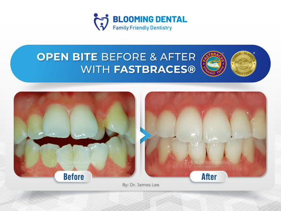 Open Bite Before & After with Fastbraces®
