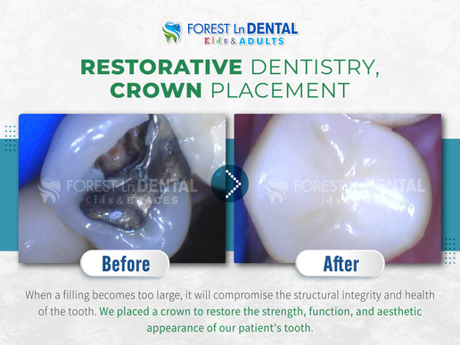 Restorative Dentistry, Crown Placement