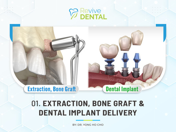 01. Extraction, Bone Graft & Dental Implant Delivery