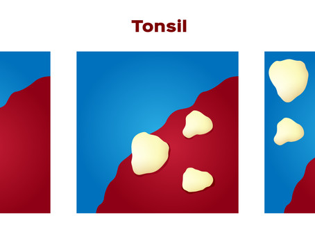 Are Tonsil Stones Giving You Bad Breath? Learn More with General & Family Dentist in Fort Worth, TX