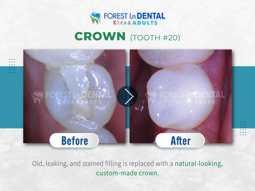 Crown (Tooth #20)