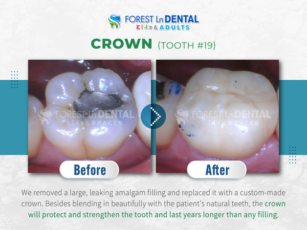 Crown (Tooth #19)