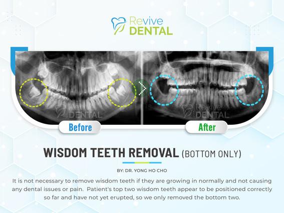 Wisdom Teeth Removal (Bottom Only)