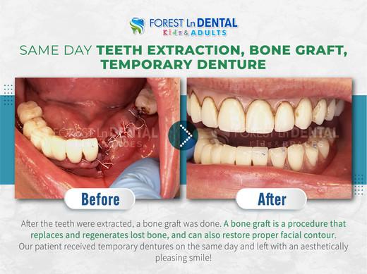Same Day Teeth Extraction,Bone Graft,Temporary Denture