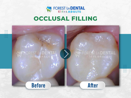 Occlusal filling