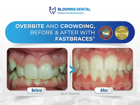 Overbite and crowding, Before & After With Fastbraces®