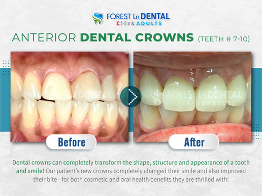Anterior Dental Crowns (Teeth # 7-10)