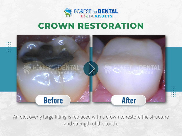 Crown Restoration