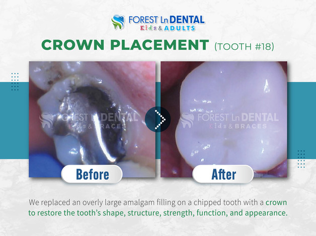 Crown Placement (Tooth #18)