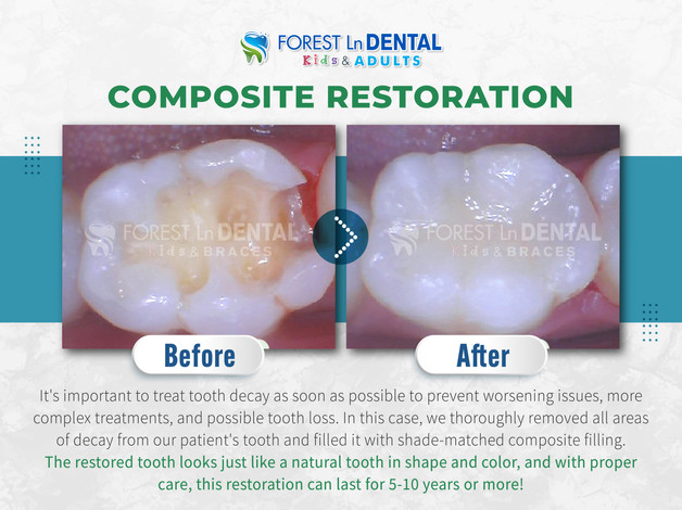 Composite Restoration