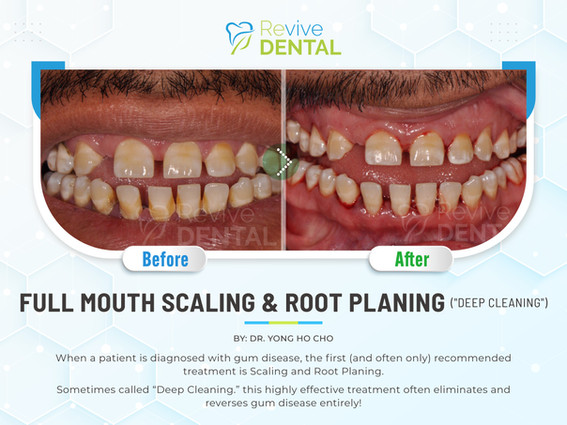 Full Mouth Scaling & Root Planing