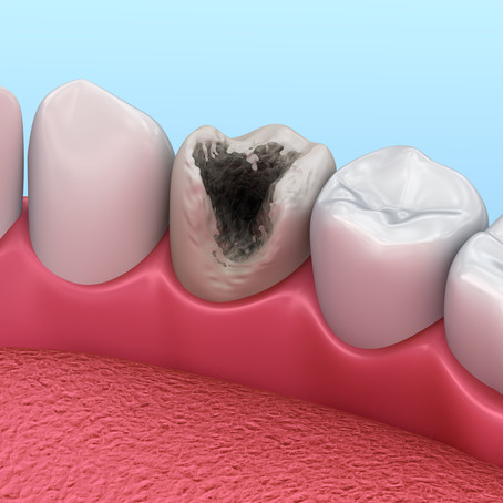 What Makes Foods More Likely to Cause Cavities? Your Waco, Texas Family & General Dentist Explains