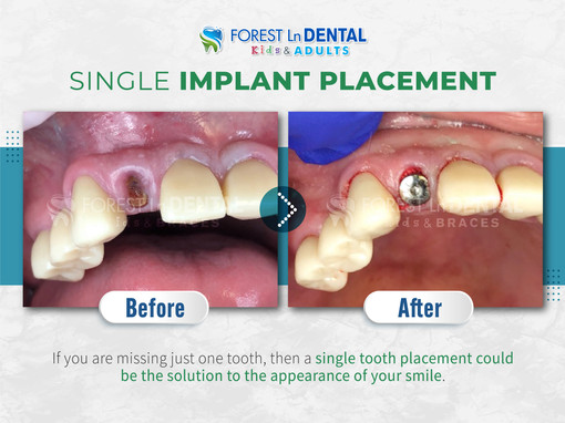 Single Implant Placement